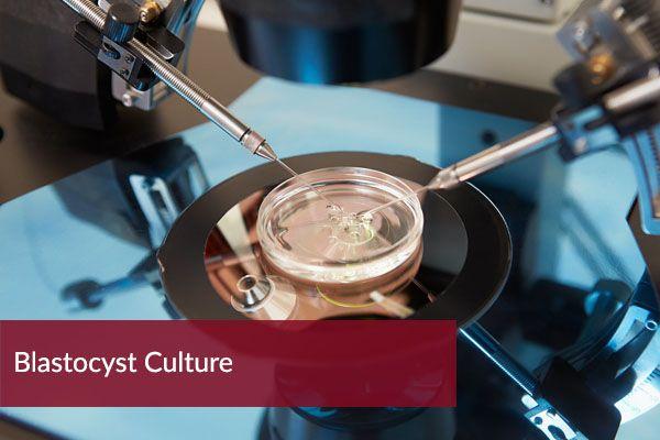 Blastocyst-Culture