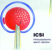 icsi treatment in hyderabad